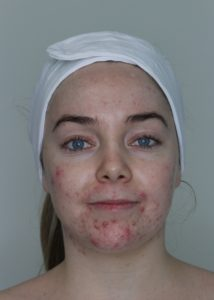 Acne Category Finalists