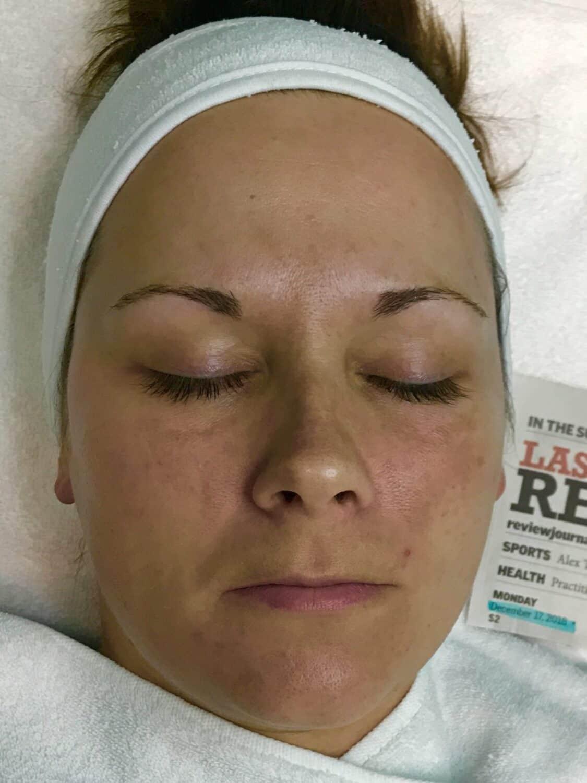 Jenna Kent Pigmentation After