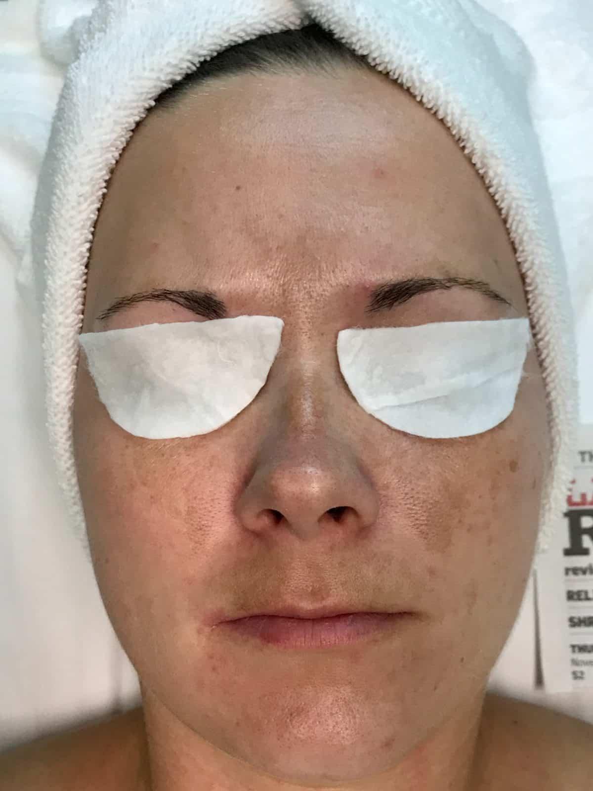 Jenna Kent Pigmentation Before