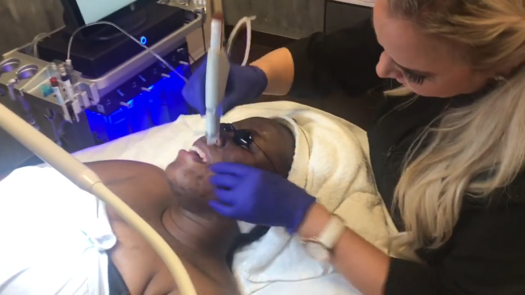 What is a Hydrafacial?